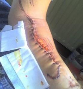 Daniels injury